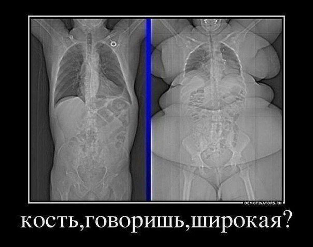 Скелет человека вес - roclet.ru