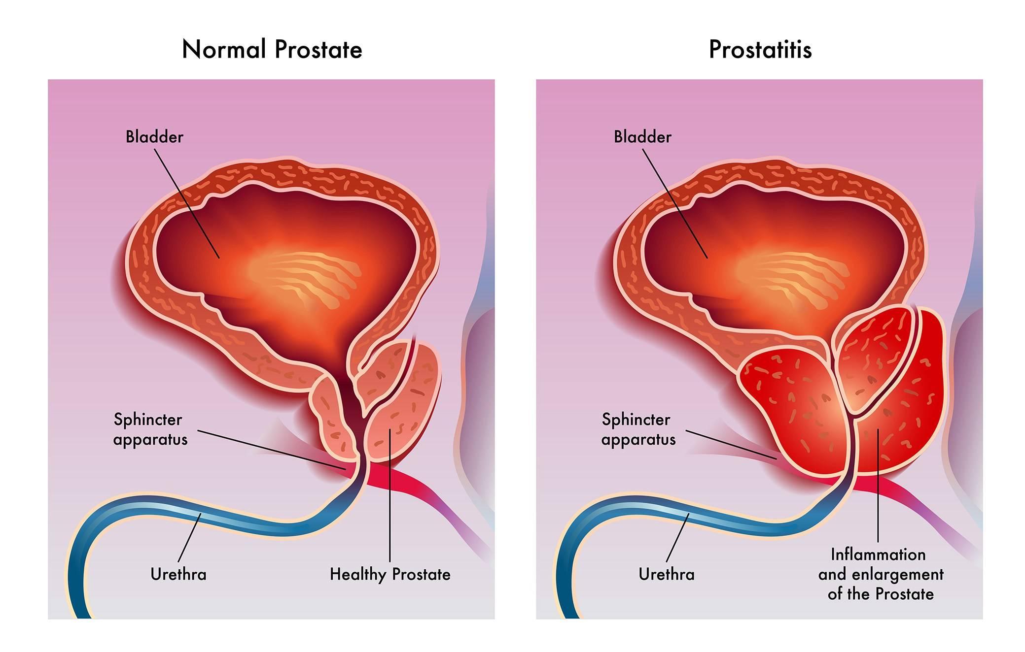 Аденома простаты или дгпж у мужчин: причины возникновения, противопоказания и фото болезни