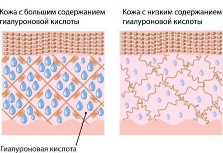 Как коллаген и гиалуроновая кислота приносят пользу коже? (2020)