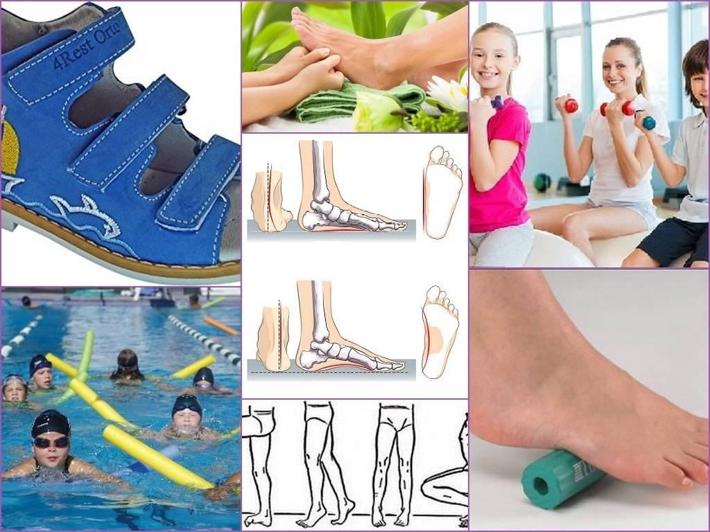 Какую обувь носить при плоскостопии: какая обувь способствует развитию плоскостопия?