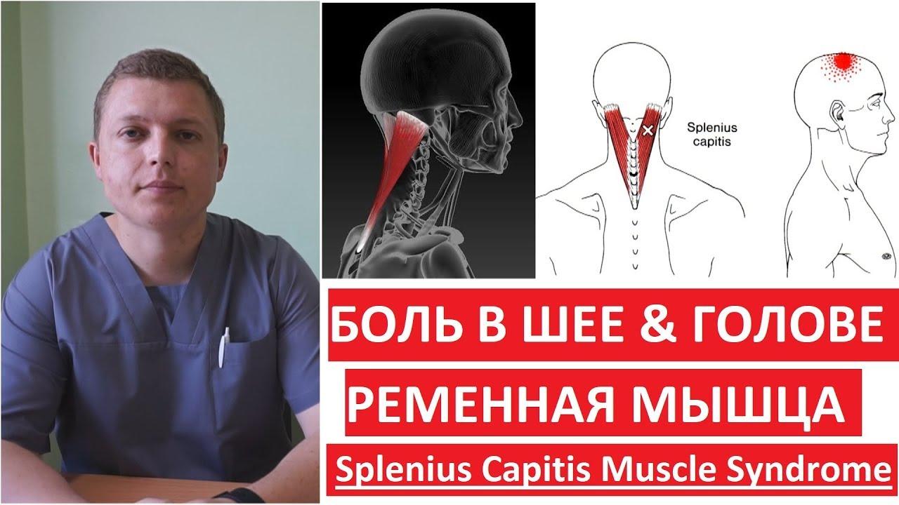Ременная мышцы: когда болит голова и шея