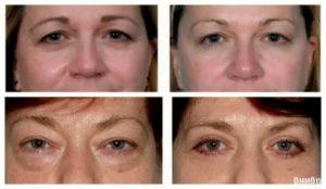 Почему отекает лицо причины и лечение, как снять отек с лица быстро