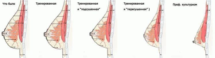 Лучшие упражнения для подтяжки груди – бюджетный и эффективный метод