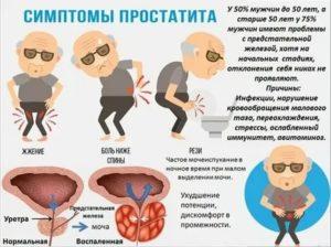 Какие бывают симптомы простатита и аденомы простаты у мужчин?