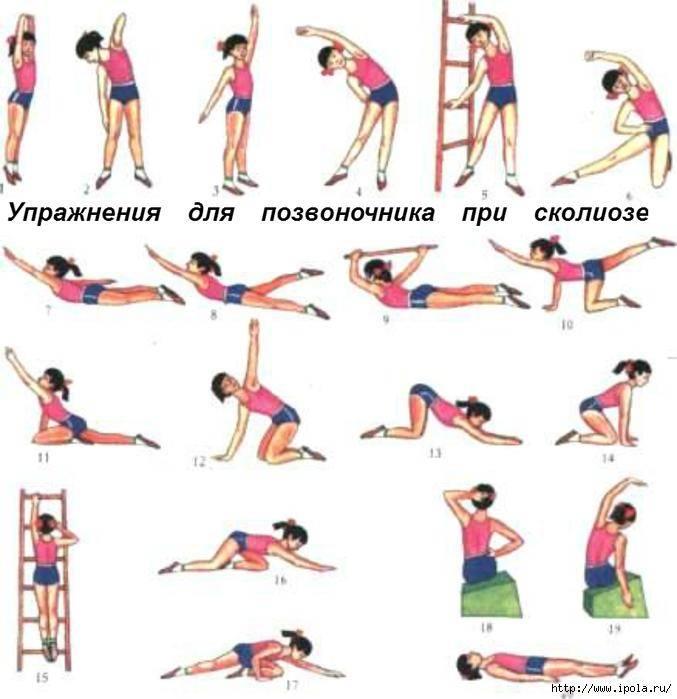 Эффективные упражнения при сколиозе 2 степени, включают в себя лфк, гимнастику, зарядку.