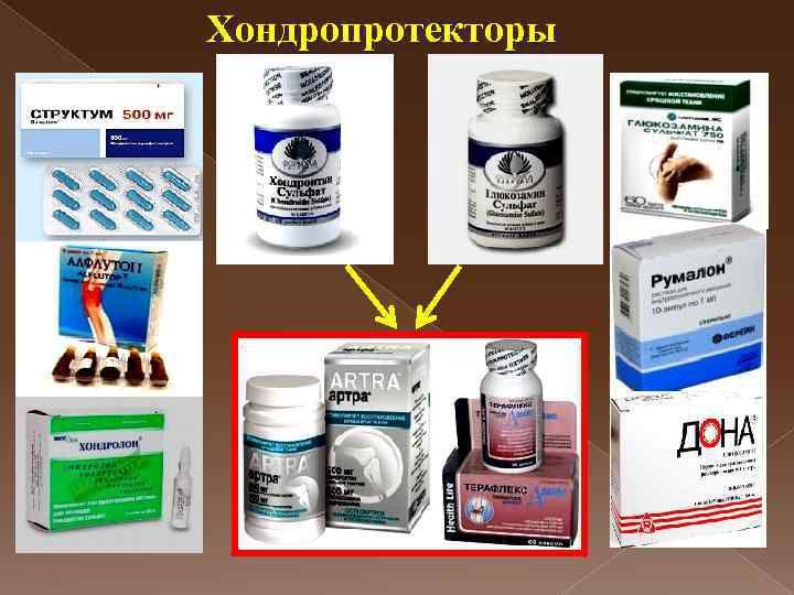Хондропротекторы для суставов - виды, состав, свойства, пропараты