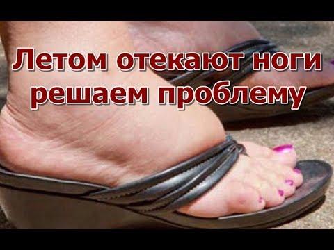 Отек ног в жару: причины сильных отеков рук и ног летом у женщин и мужчин