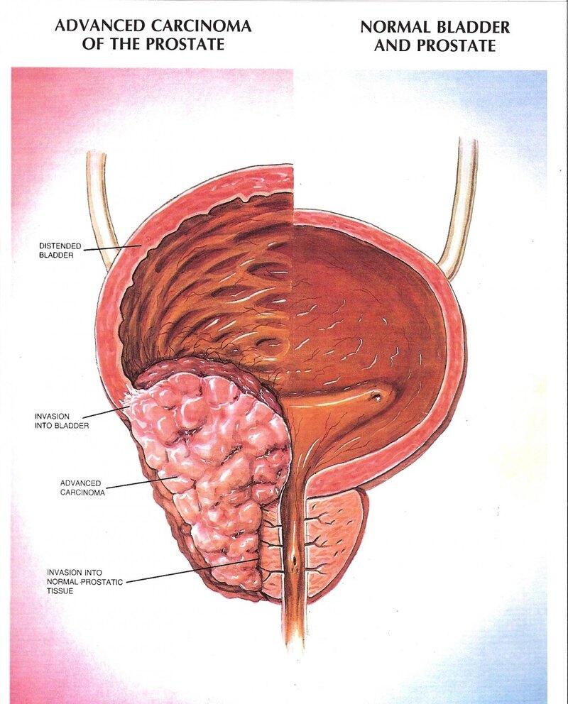 Симптомы аденомы простаты у мужчин - профилактика и лечение