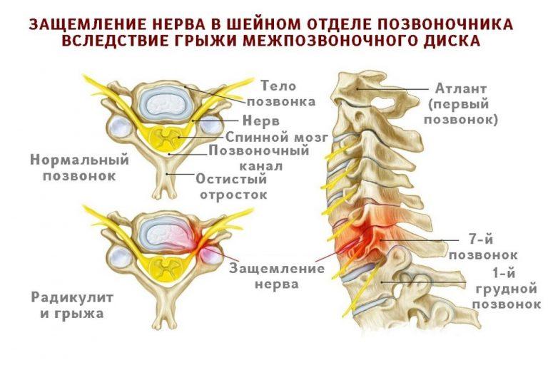 Защемление нерва в грудном отделе: симптомы и лечение