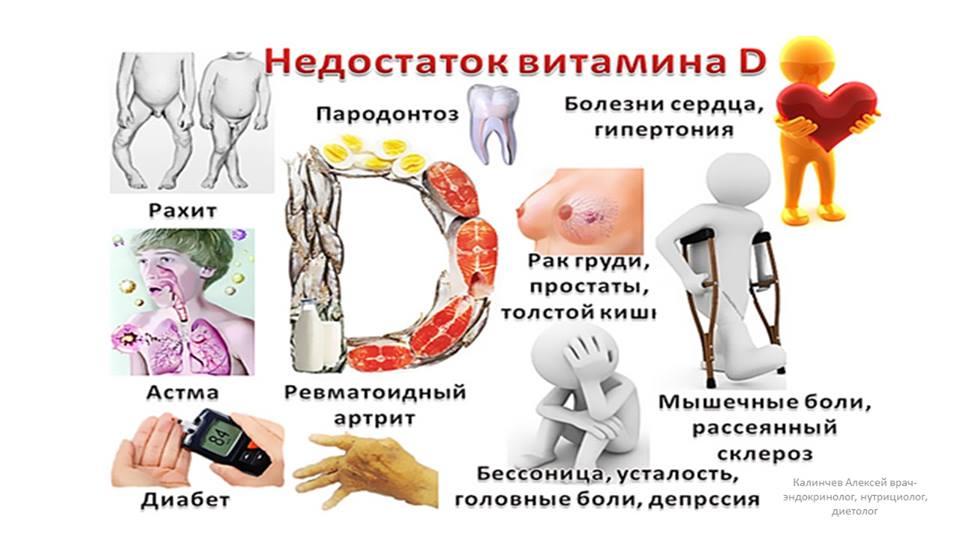 Недостаток витамина д: симптомы и признаки дефицита у взрослых женщин, к чему приводит нехватка