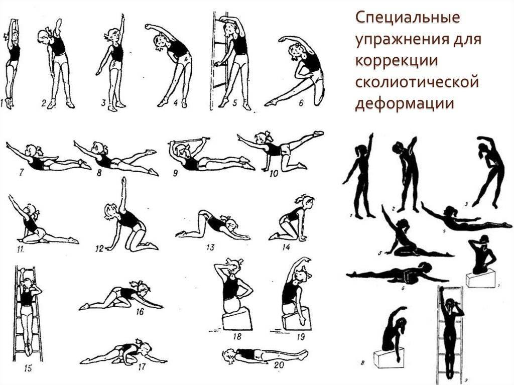 Как вылечить сколиоз в домашних условиях: комплекс эффективных упражнений