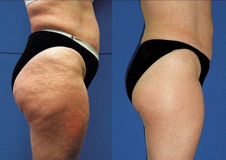 Как убрать жир с бедер и ягодиц женщине и мужчине: можно ли сбросить лишний вес, добиться стройных ног и подтянутой попы быстро
