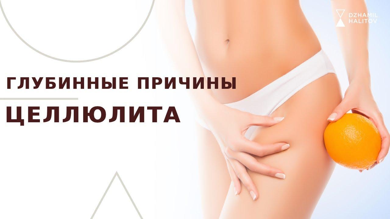 Что такое целлюлит у женщин;причины появления целлюлита;