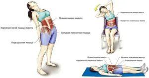 Эффективные способы лечения растяжения мышц руки: первая помощь, мази, физиотерапия