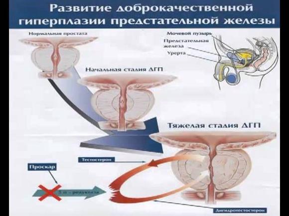 Аденома простаты (аденома предстательной железы): причины, симптомы и лечение у мужчин