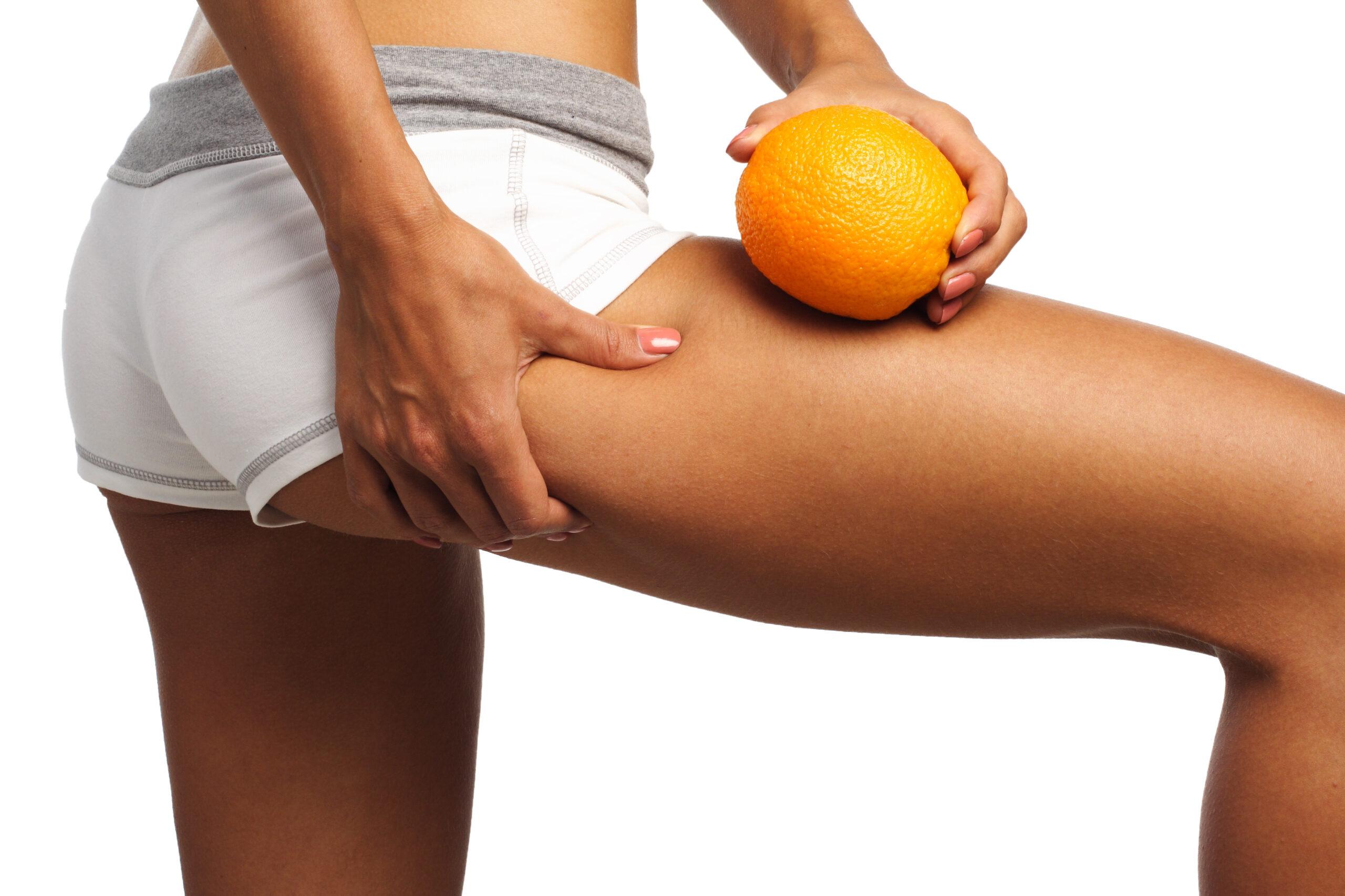 20 способов как избавиться от целлюлита в домашних условиях и убрать целлюлит на ногах и попе с помощью упражнений, питания и народными средствами