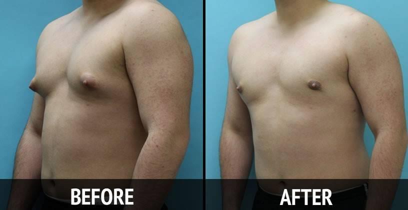 Компрессионное белье после лечения гинекомастии у мужчин и другие средства — портал о заболеваниях груди