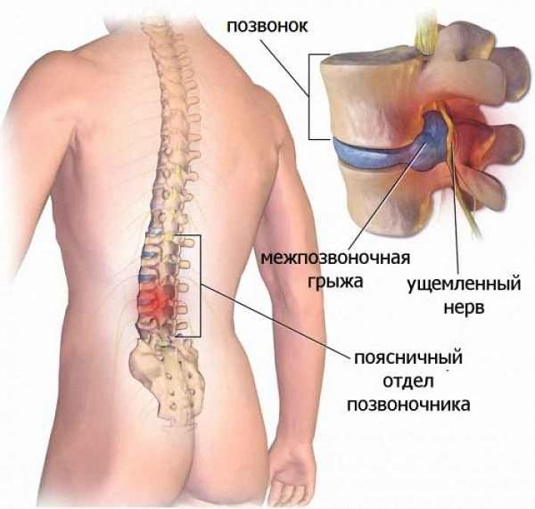 Защемление нерва в грудном отделе: симптомы и лечение, что делать, если защемило