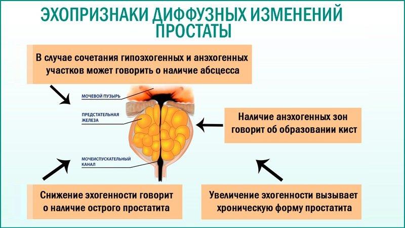 Какие есть способы лечения простатита и аденомы предстательной железы?