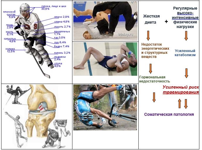 Спортивные травмы: причины, симптомы, диагностика, лечение   компетентно о здоровье на ilive