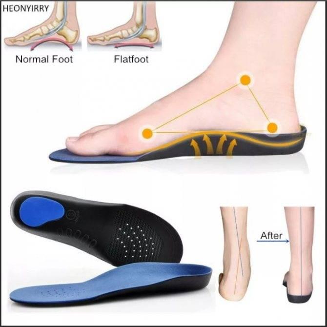 Можно ли бегать при плоскостопии и какие выбрать кроссовки в этом случае