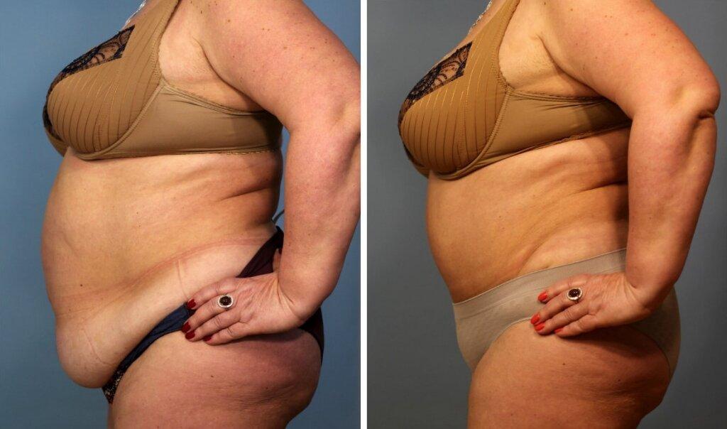Как подтянуть кожу лица при похудении и после похудения?