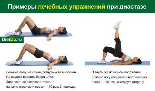 Упражнения при диастазе прямых мышц живота после родов: польза и правила выполнения