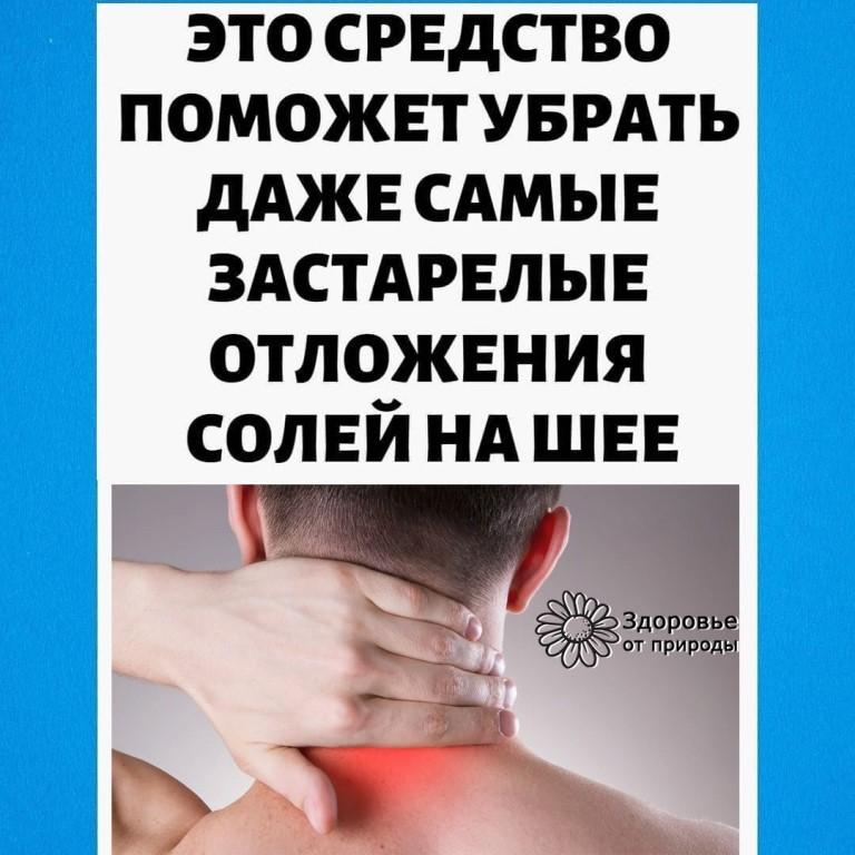 Отложение солей в шейном отделе: как убрать, симптомы, лечение, упражнения