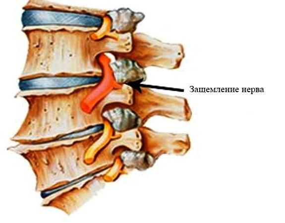 Защемление нерва в спине: причины, симптомы, лечебная тактика