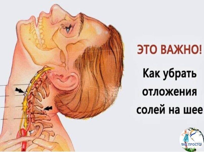 Методы устранения отложений солей на шее