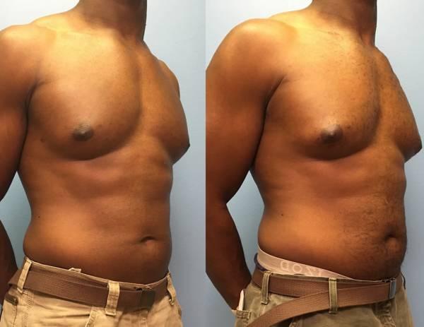 Компрессионное белье после лечения гинекомастии у мужчин и другие средства