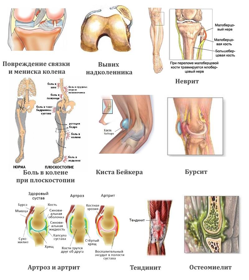 Болят ноги: причины, диагностика, лечение