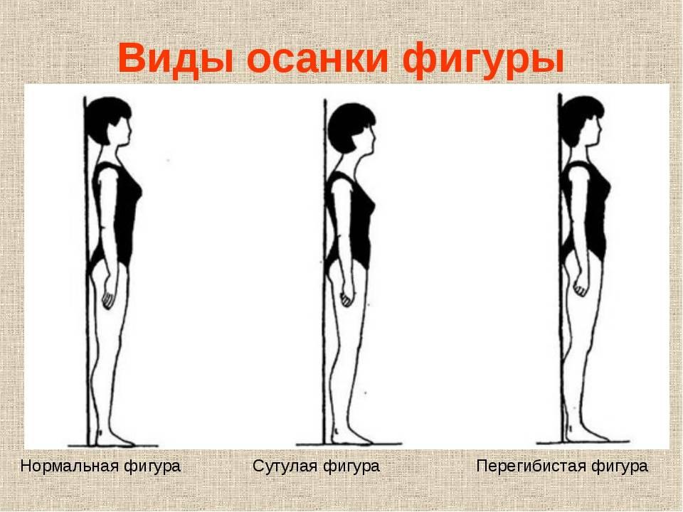 Сутулость: как исправить у взрослого гимнастикой и упражнениями