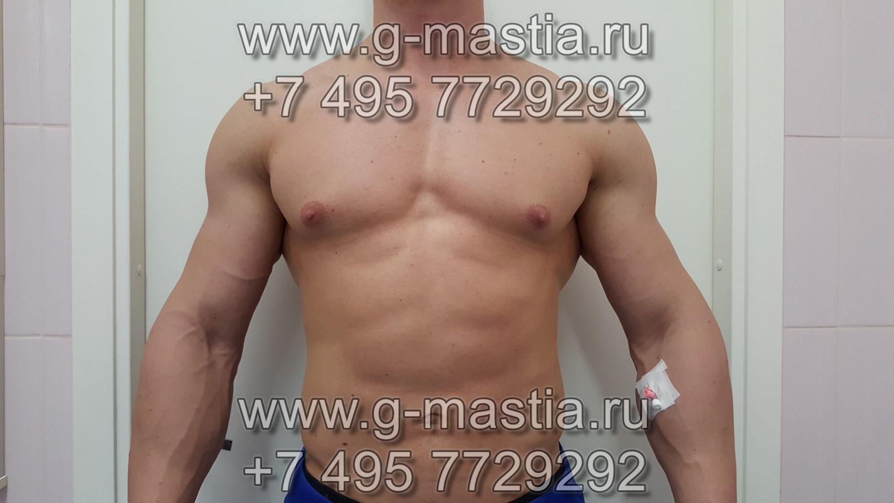 Гинекомастия у мужчин: фото, лечение без операции
