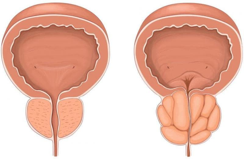 Гиперплазия предстательной железы у мужчин: симптомы и лечение