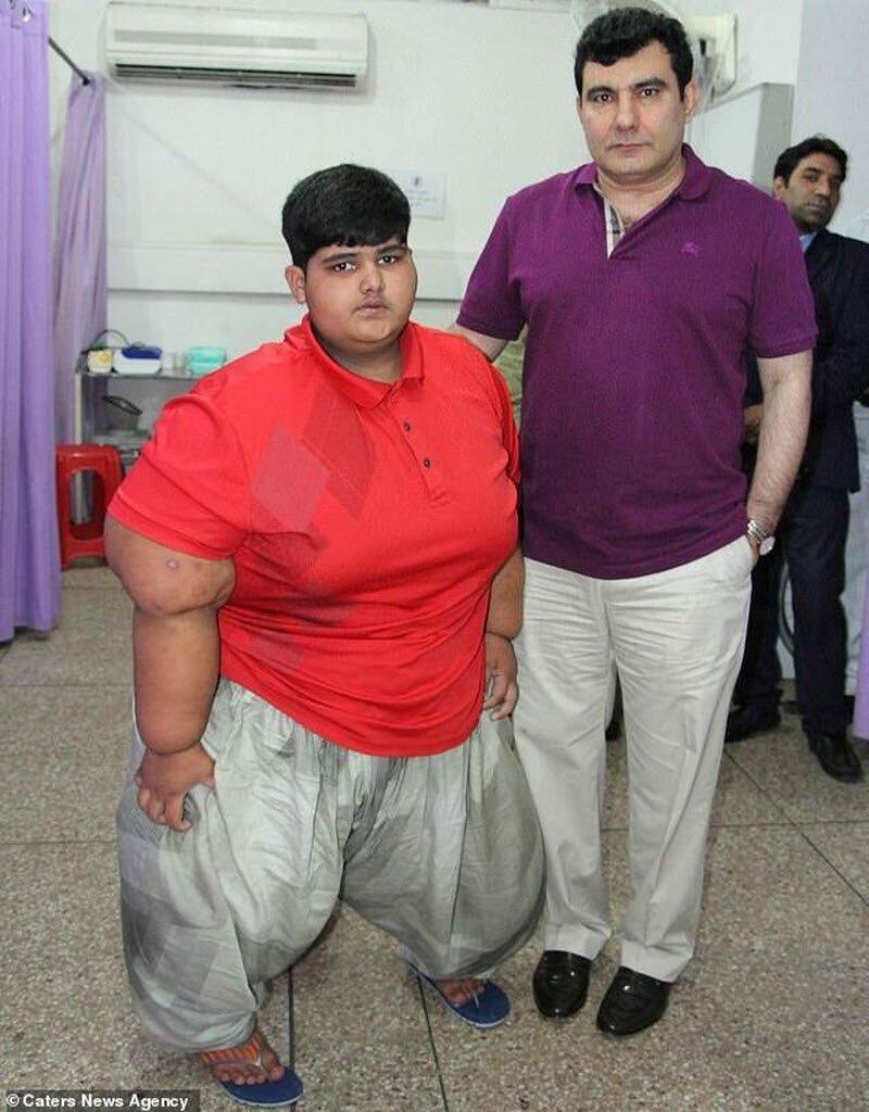 Самый толстый ребенок в мире: как выглядит сегодня мальчик джамбулат хатохов, фото и вес, сколько весит в 2018 году?