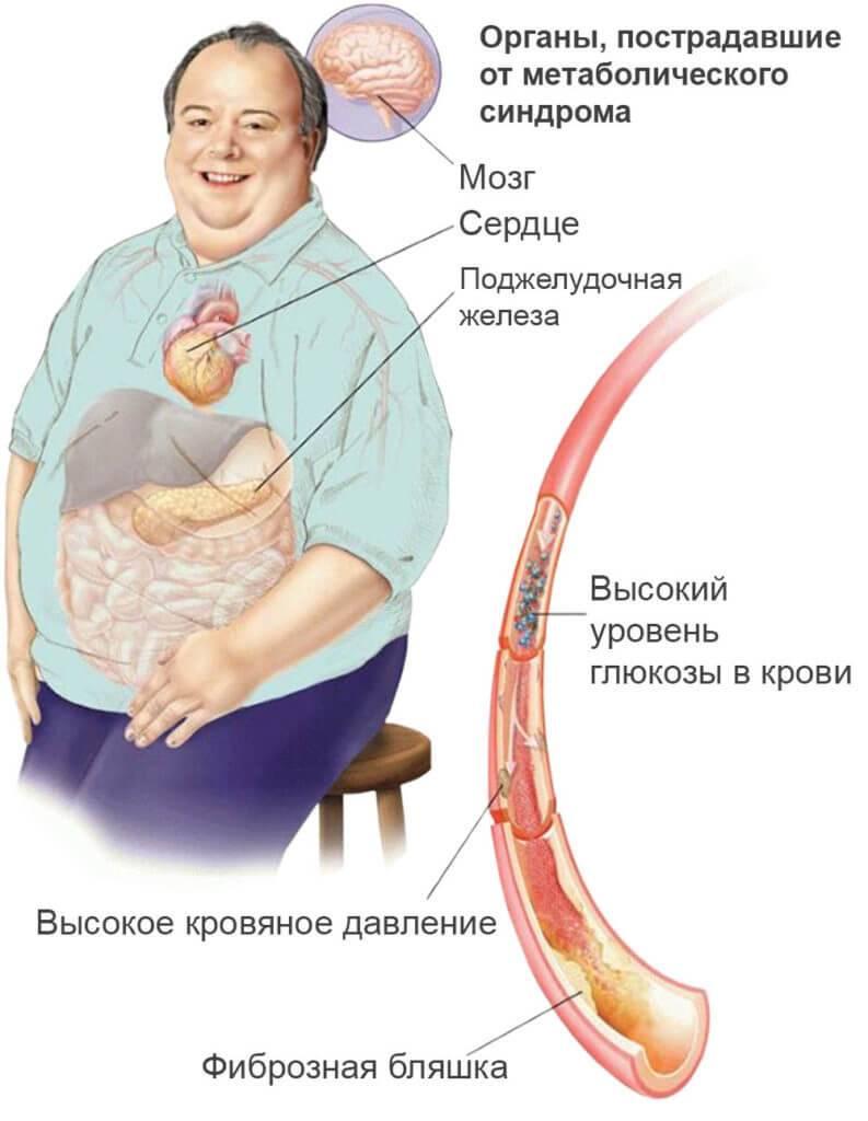 Метаболический синдром: что нужно знать о «смертельном квартете»