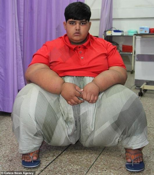 Двадцатка самых толстых людей на земле