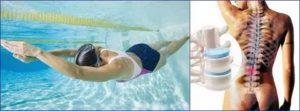 Плавание при остеохондрозе позвоночника: польза и вред