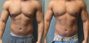 Как убрать грудь у мужчин: физические упражнения и дополнительные средства