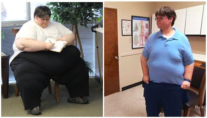 """""""до и после"""": как выглядят люди, похудевшие на 150 кг и больше"""