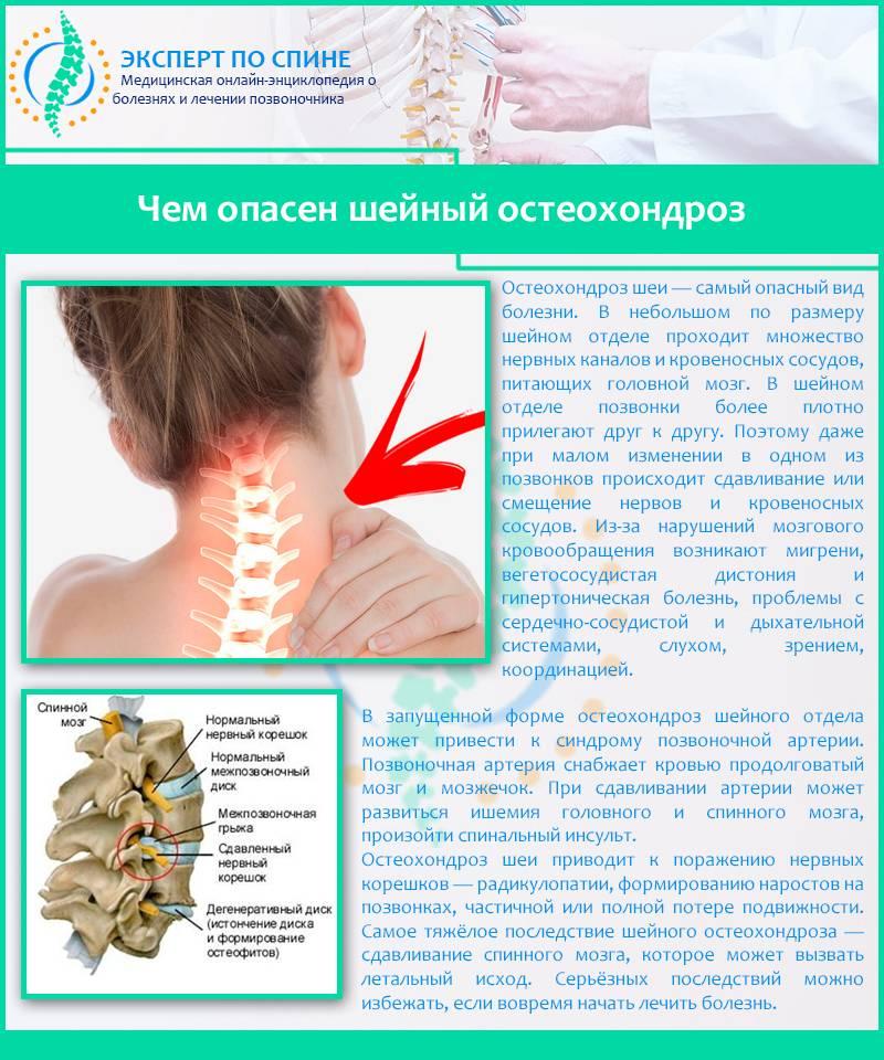 Чем лечить боль в шее: когда обратиться к врачу, методы лечения
