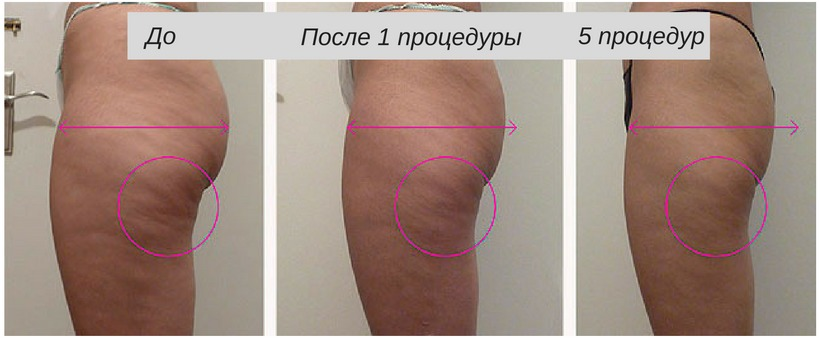 Душ шарко для похудения – эффект для снижения веса