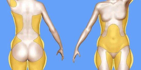 Локальные жировые отложения - типы, коррекция фигуры, как убрать живот, бока