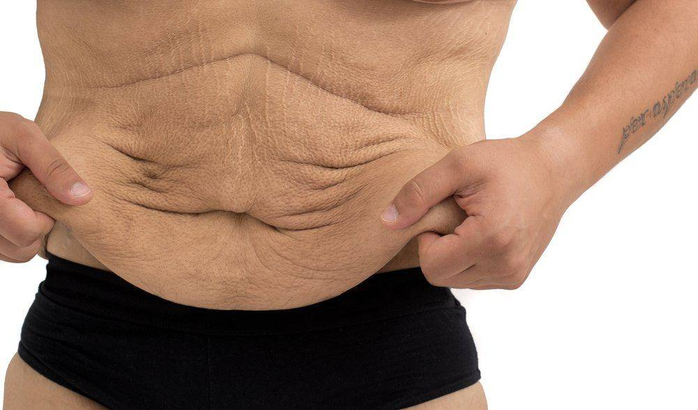 Как подтянуть кожу после резкого похудения в домашних условиях?