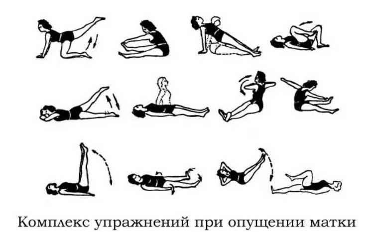 Какие силовые упражнения можно делать при геморрое