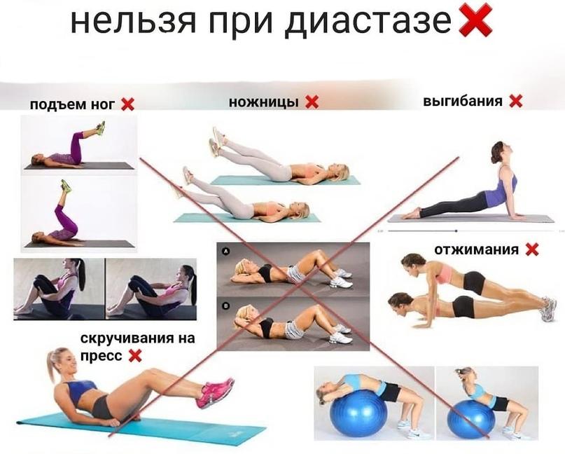 Упражнения при диастазе прямых мышц живота | комплекс упражнений для устранения диастаза
