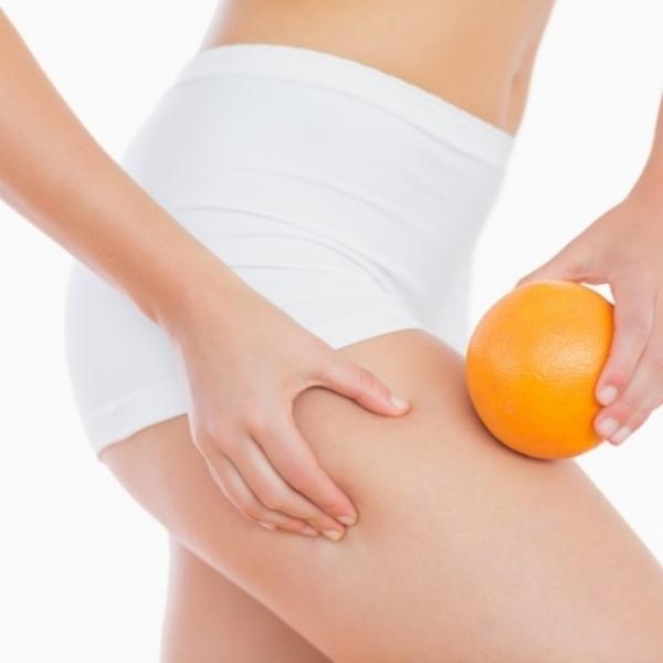 Целлюлит на ногах: причины появления, как избавиться от апельсиновой корки