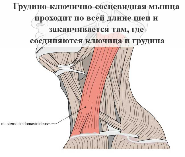 Миозит грудино ключично сосцевидной мышцы лечение - советы артролога