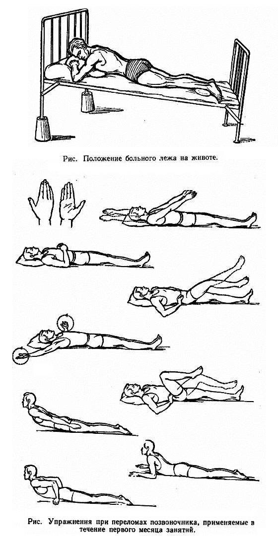 Растяжение мышц спины: симптомы, лечение в домашних условиях